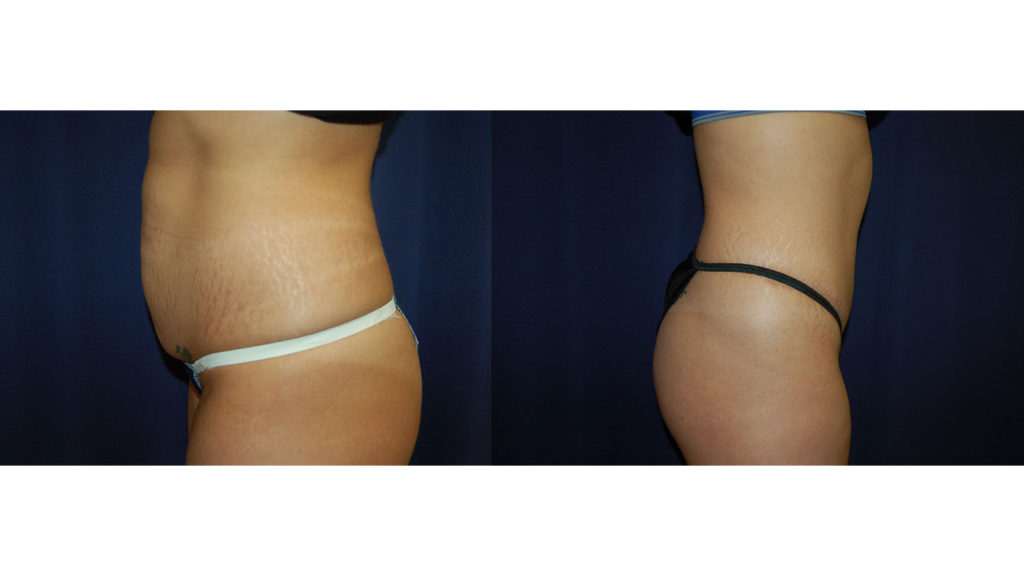 How popular is plastic surgery in Charlotte?