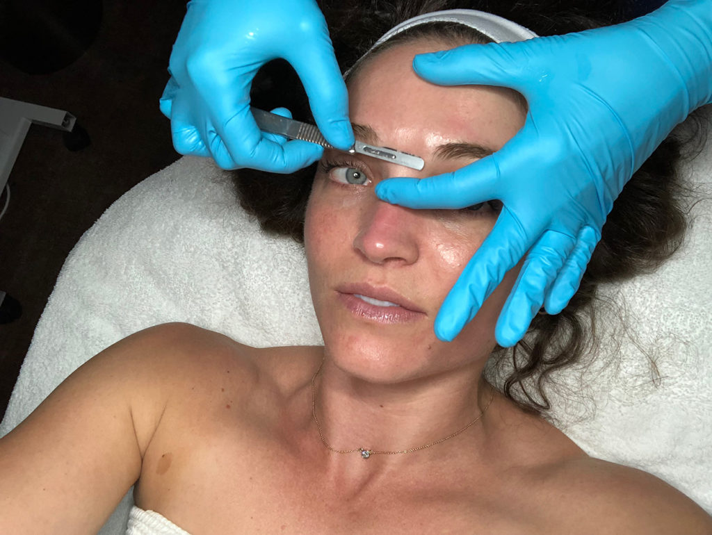 Women are getting their faces shaved for beauty. All your dermaplaning questions answered